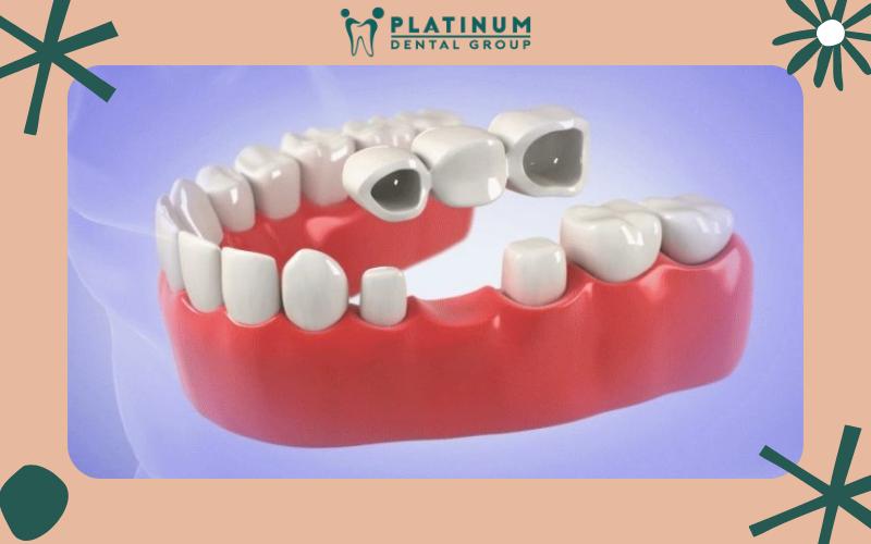Các phương pháp khắc phục tình trạng răng giả gây hôi miệng hiệu quả