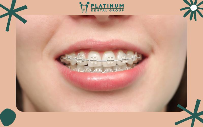 Các trường hợp bệnh nhân trồng răng giả hiện nay