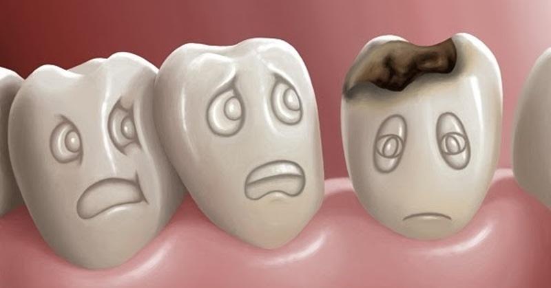 Xiết ăn răng sẽ khiến trẻ đau nhức vô cùng khó chịu