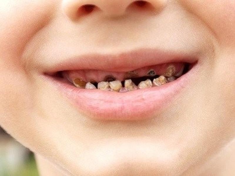Những nguyên nhân dẫn đến răng bị xiết ăn của trẻ?