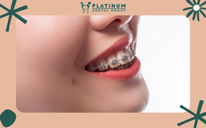 Niềng răng giúp răng đẹp hơn, thay đổi ngoại hình