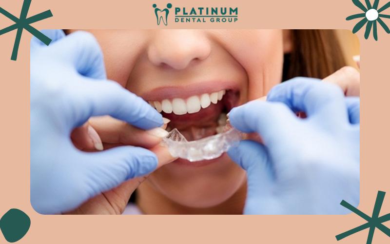 Giá cả phụ thuộc và dạng niềng răng