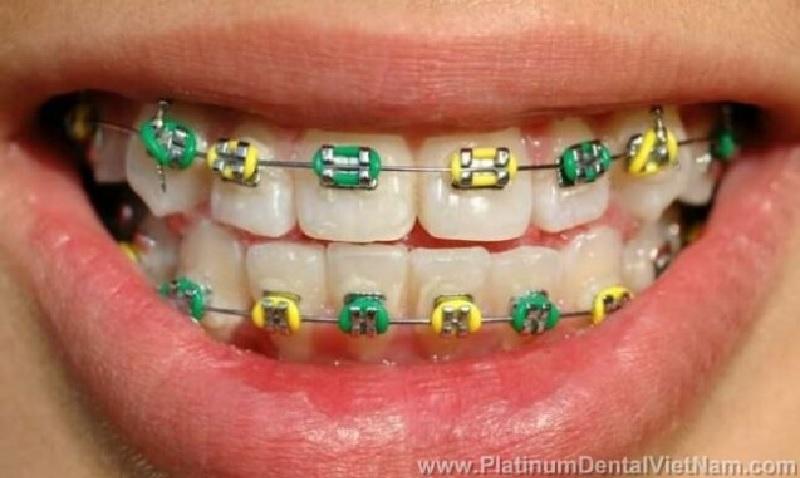 Phương pháp niềng răng kim loại