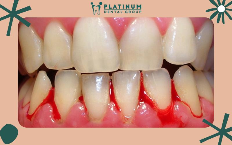 Bệnh chảy máu chân răng là gì?