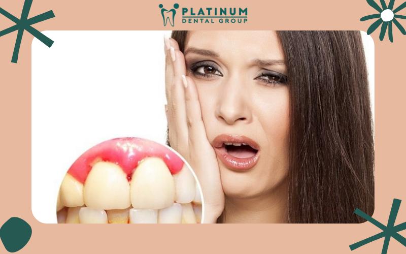 Những biến chứng nguy hiểm của bệnh chảy máu chân răng