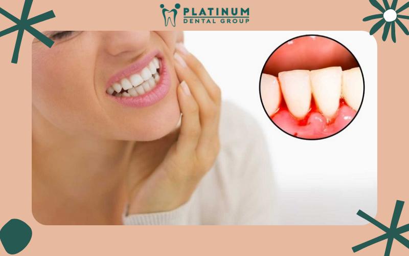 Bệnh chảy máu chân răng có thể phát hiện sớm không?