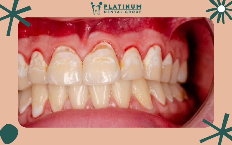 Những phương pháp điều trị hiệu quả bệnh chảy máu chân răng