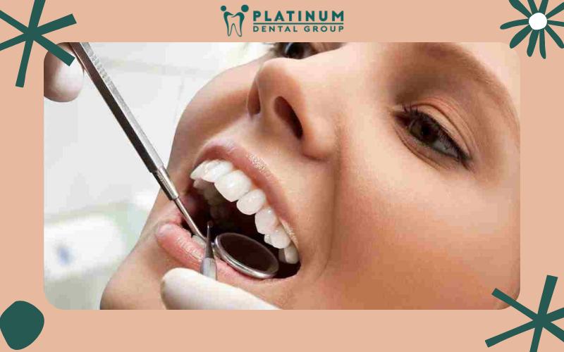 Bao lâu nên kiểm tra định kì răng 1 lần?