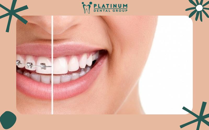 Niềng 2 răng cửa như thế nào là hợp lý nhất?