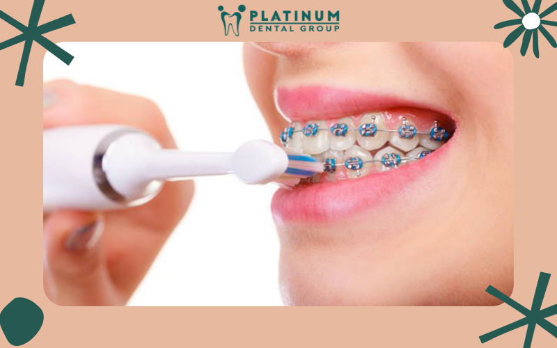 Chải răng đúng cách để không gây ảnh hưởng đến mắc cài