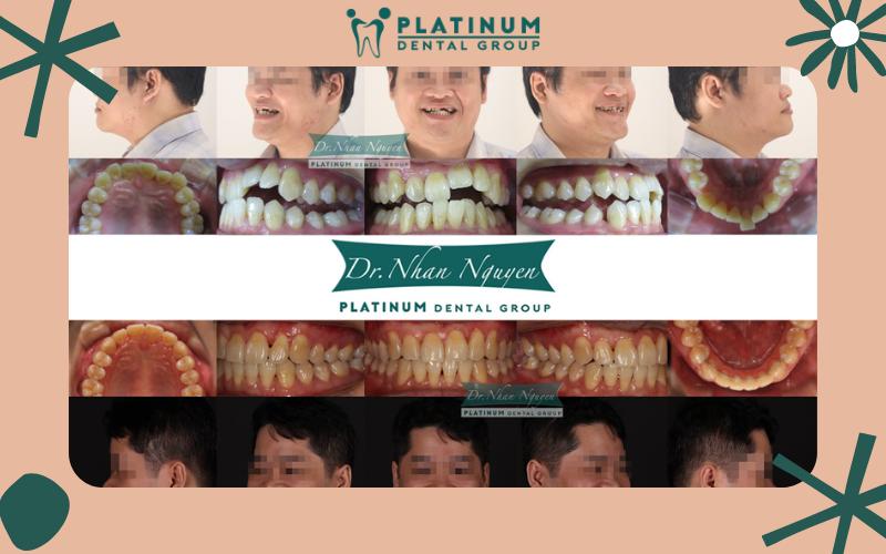 Sở hữu hàm răng đều, đẹp với sự hỗ trợ của Nha Khoa Platinum