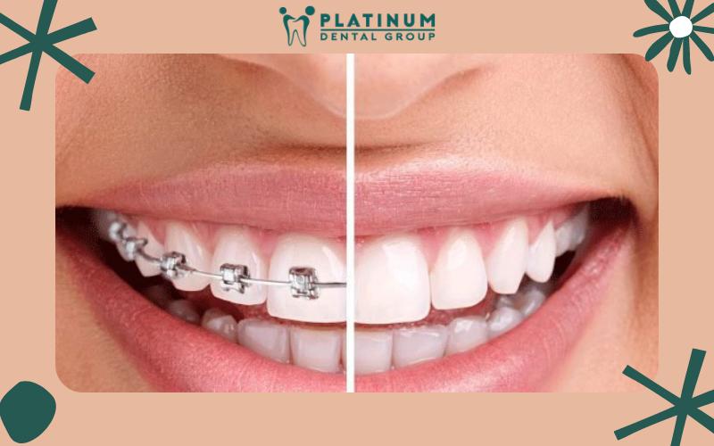 Niềng răng bao lâu mới có thể tháo?