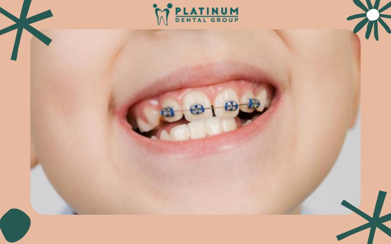 Niềng răng cho trẻ vào độ tuổi nào là thích hợp?