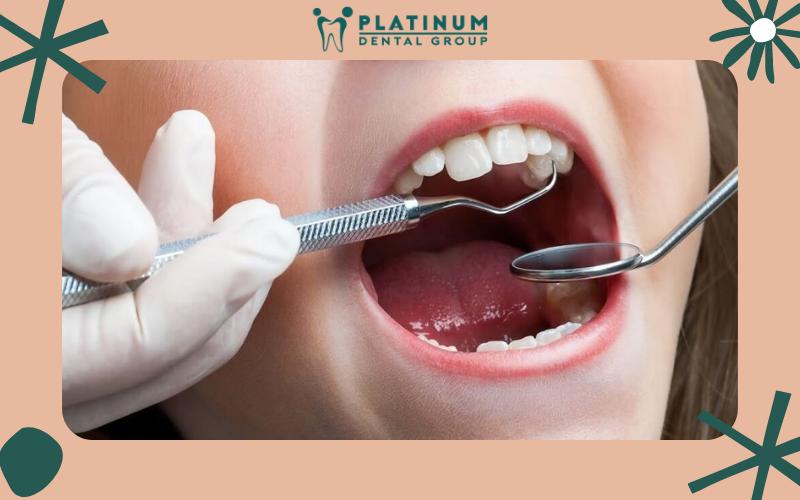 Trẻ em khi niềng răng có đau không?