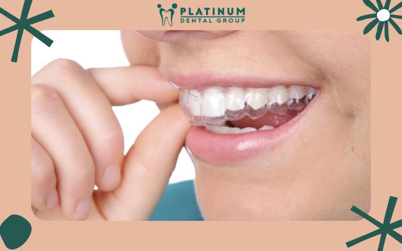 Trường hợp không cần nhổ răng là gì?