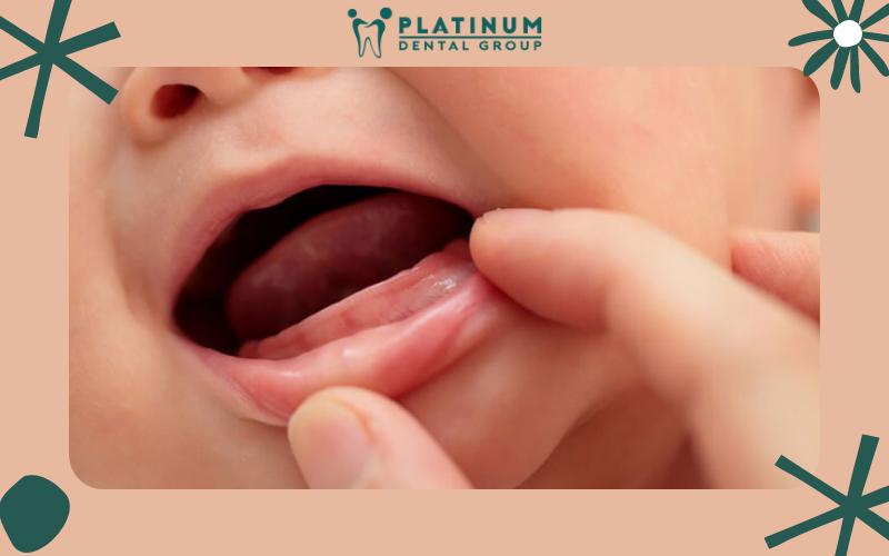 Tại sao trẻ chậm mọc răng? Nguyên nhân là gì?