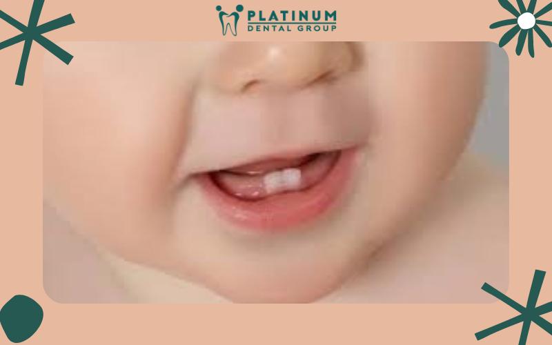 Trẻ mọc răng chậm nguy hiểm không?