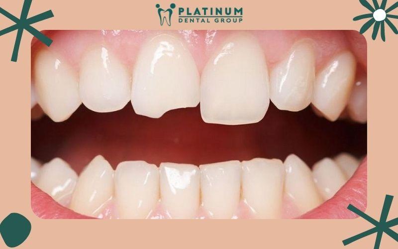 Răng mẻ cần bọc răng sứ