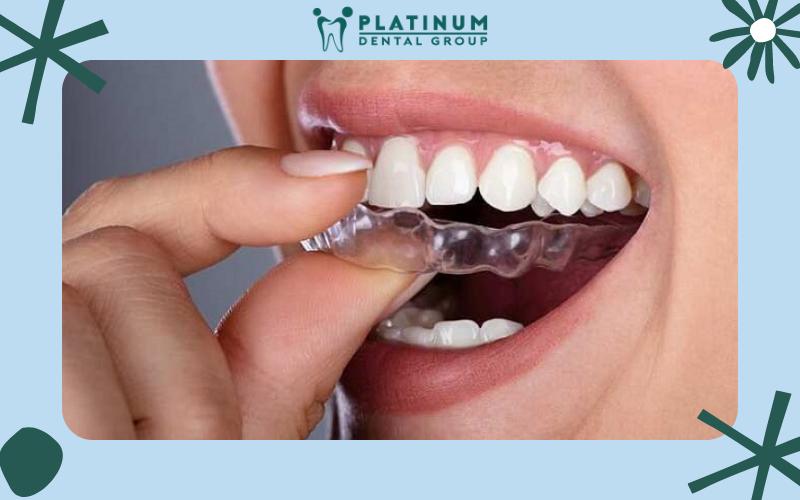 Bọc răng sứ Titan cải thiện khả năng nhai tốt