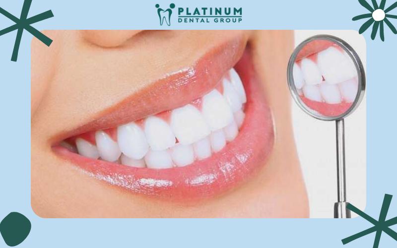 Răng sứ lõi Titan tăng tính thẩm mỹ cho người sử dụng