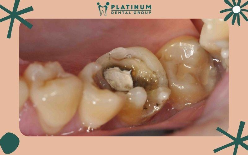 Cao răng hình thành lâu ngày gây sâu răng