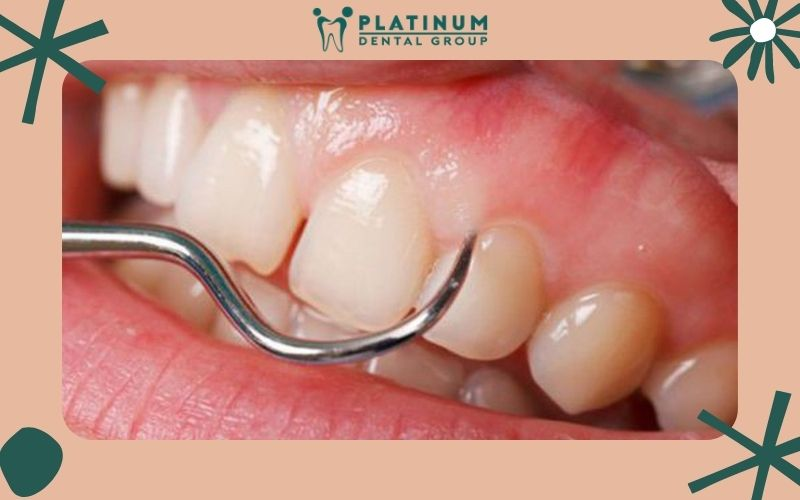 Có rất nhiều lợi ích khi lấy vôi răng