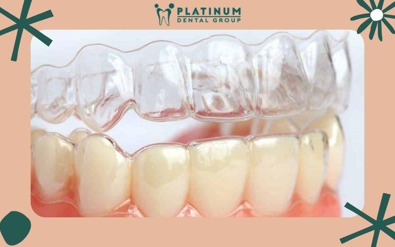 Dùng máng trong suốt invisalign để bảo vệ răng sứ