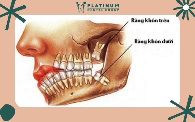 Hình ảnh vị trí của những chiếc răng khôn