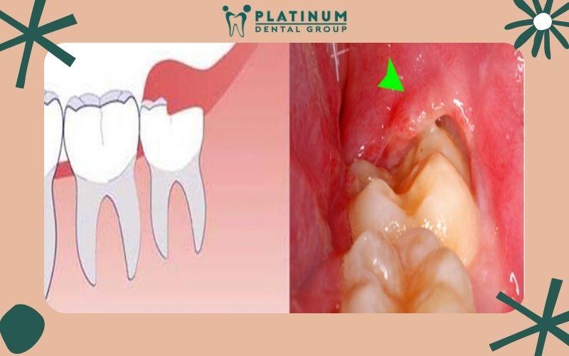 Chăm sóc răng khôn không cẩn thận tạo điều kiện cho vi khuẩn phát triển dẫn đến sâu răng