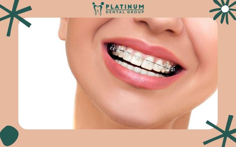 Niềng răng giúp khớp cắn đạt tỷ lệ chuẩn