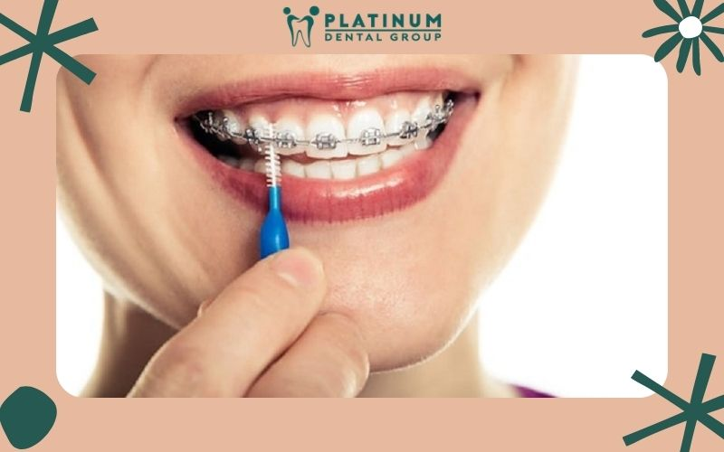 Niềng răng giúp ăn nhai dễ dàng hơn