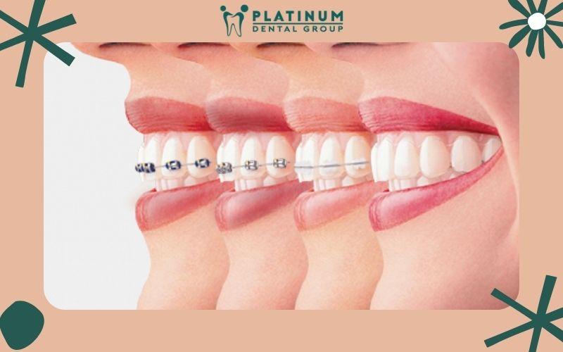 Quá trình niềng răng thường kéo dài 12 - 24 tháng