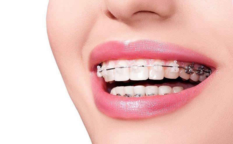 Niềng răng không đau như lời đồn