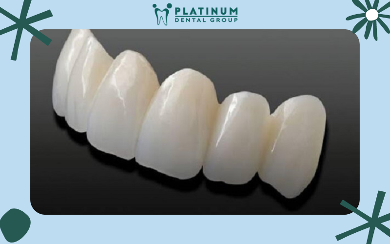 Răng sứ không kim loại là gì?