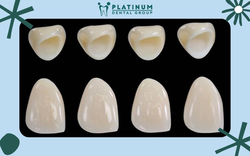 Ưu điểm lành tính cho người sử dụng khi bọc răng sứ không kim loại
