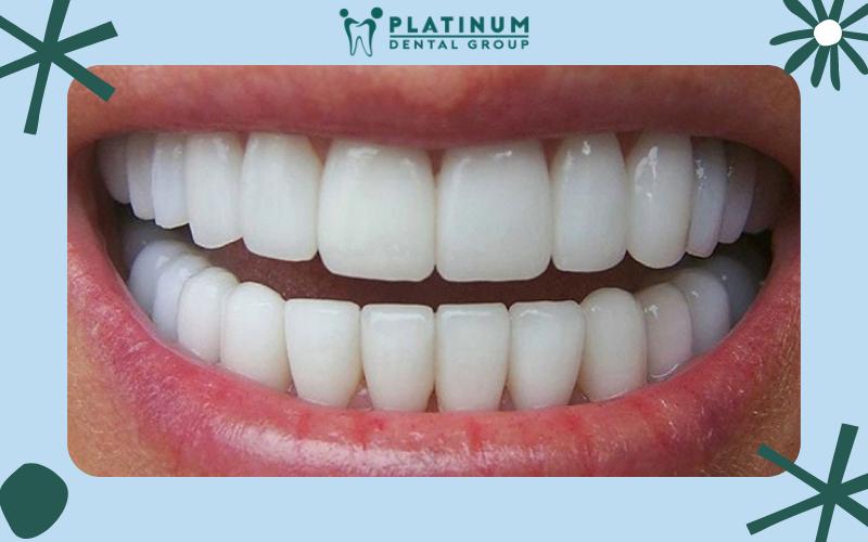 Ưu điểm độ bền cao khi bọc răng sứ không kim loại
