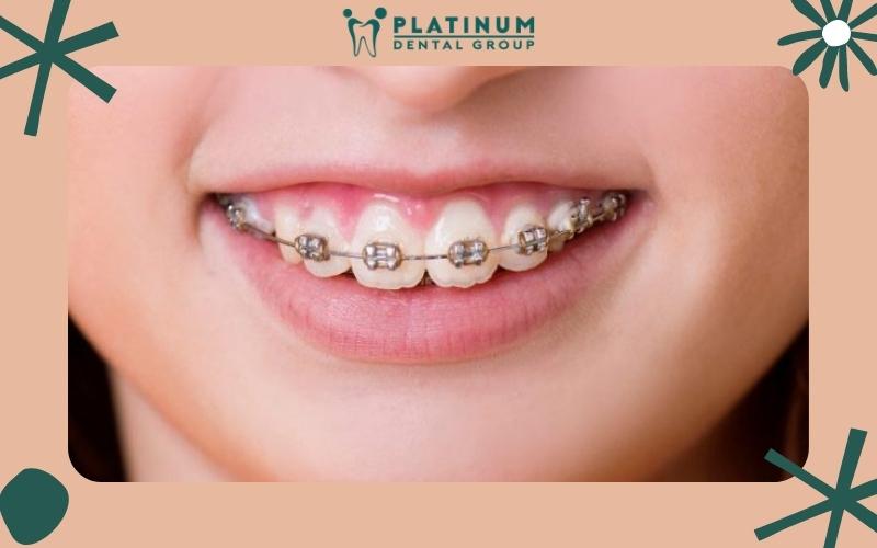 Phương pháp bọc răng sứ cho răng hô