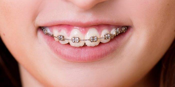 Phương pháp bọc răng sứ cho răng hô an toàn hiệu quả