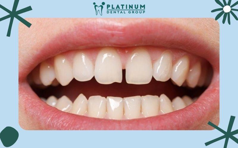 Trường hợp răng thưa cần bọc răng sứ
