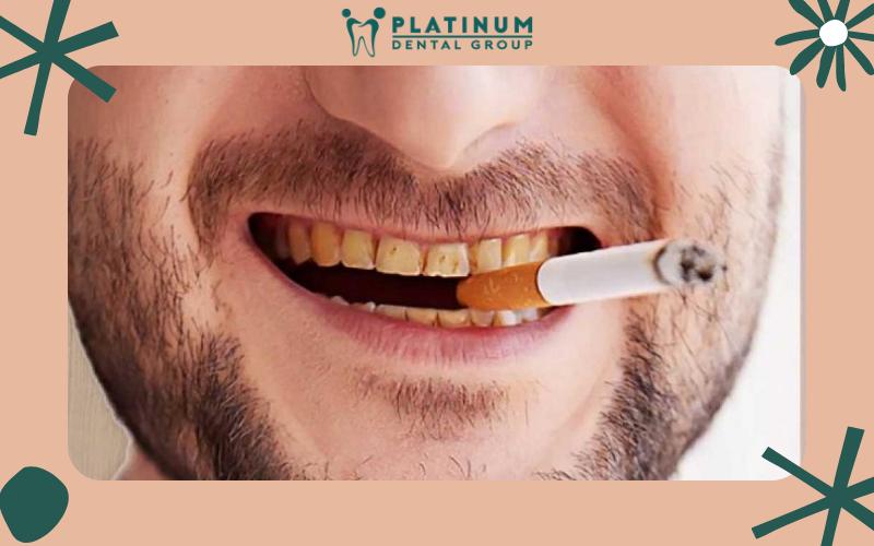 Răng ố vàng do hút thuốc lá lâu ngày