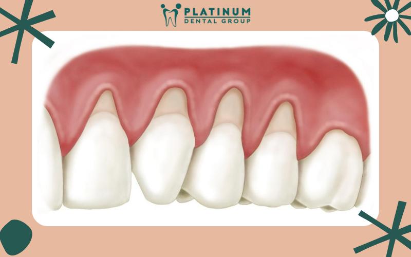 Viêm lợi sau khi bọc răng sứ là gì