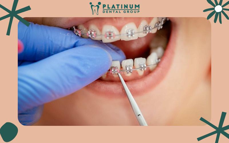 Các trường hợp cần thiết phải bắt vít khi niềng răng?