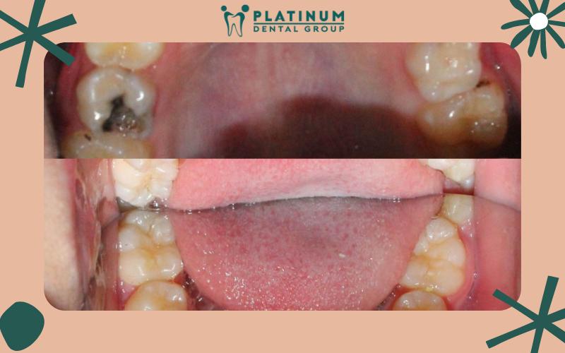 Các loại móm răng phổ biến hiện nay