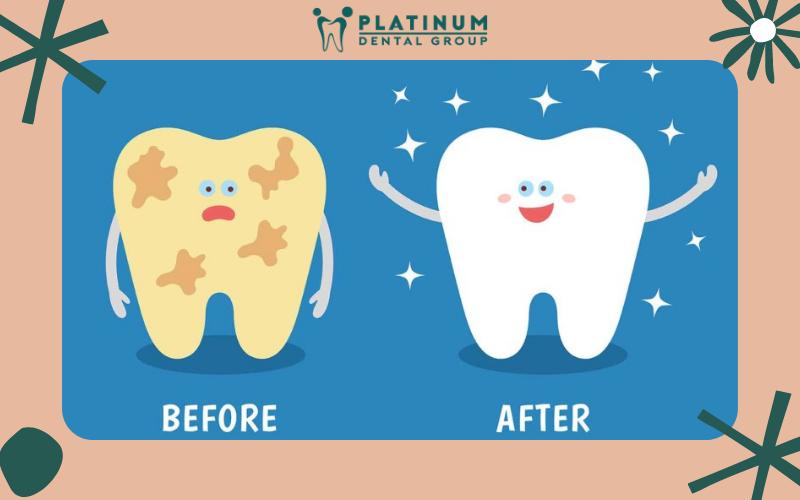 Giới thiệu phương pháp cạo vôi răng