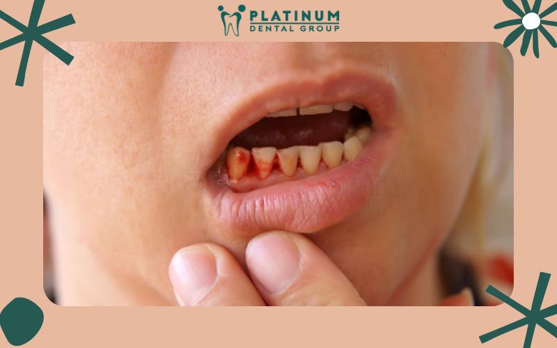 Cách cầm máu cho lợi sau khi nhổ răng khôn