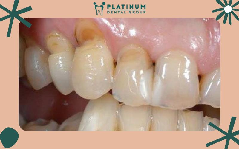 Tình trạng mòn răng là gì?