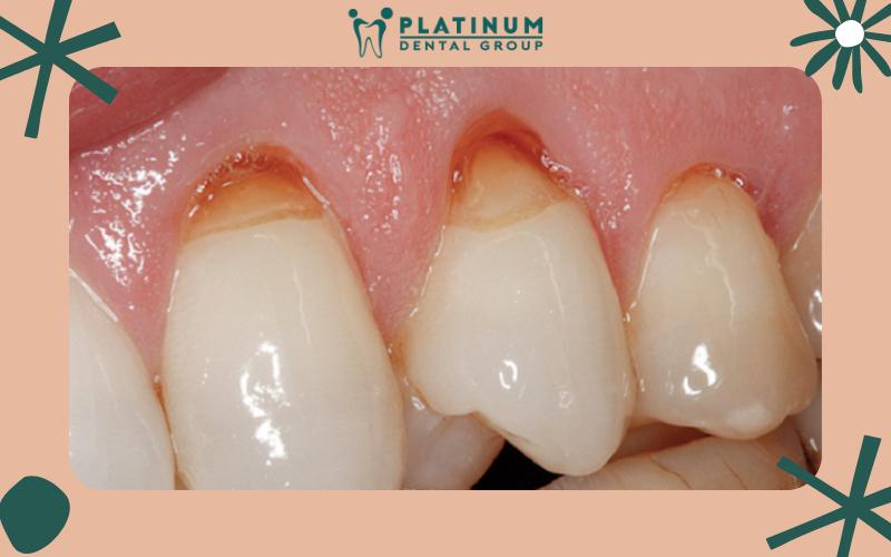 Những biến chứng nguy hiểm nếu để mòn răng kéo dài
