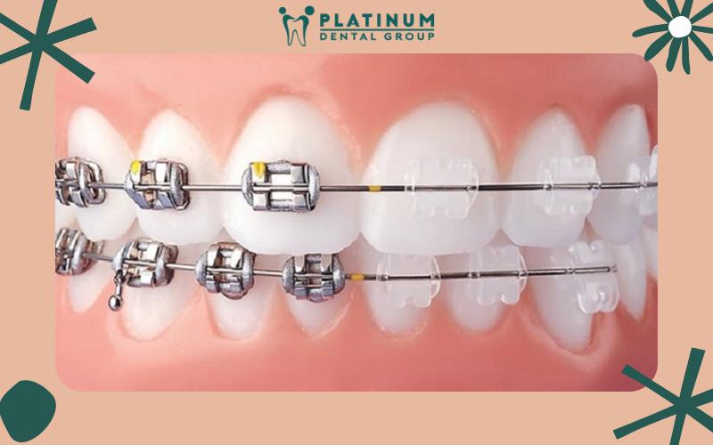 Quy trình niềng răng khểnh