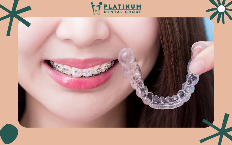 Phương pháp niềng răng mắc cài và trong suốt