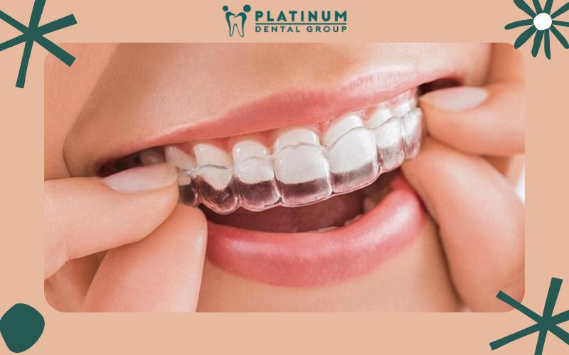 Ưu điểm phương pháp niềng răng mắc cài và trong suốt